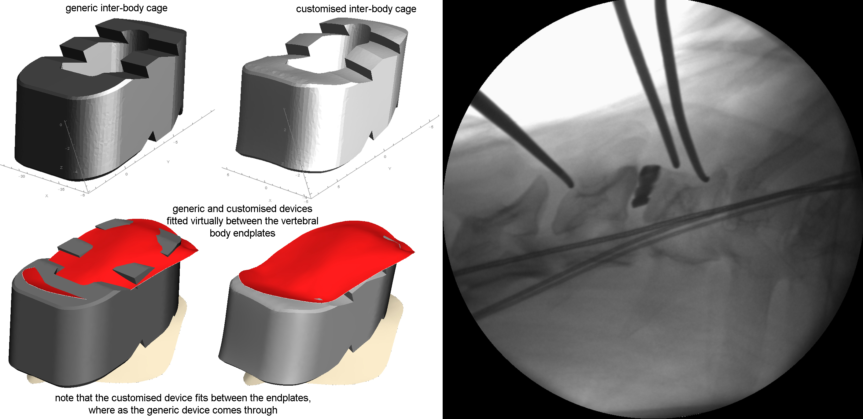 implants and devices copy