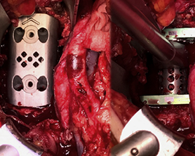 New Custom Implant Study